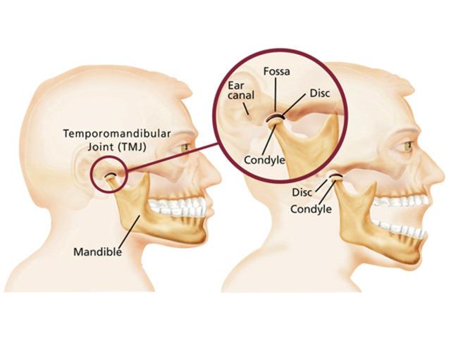 Reduce Symptoms of TMJ Treatment in Melbourne - 2
