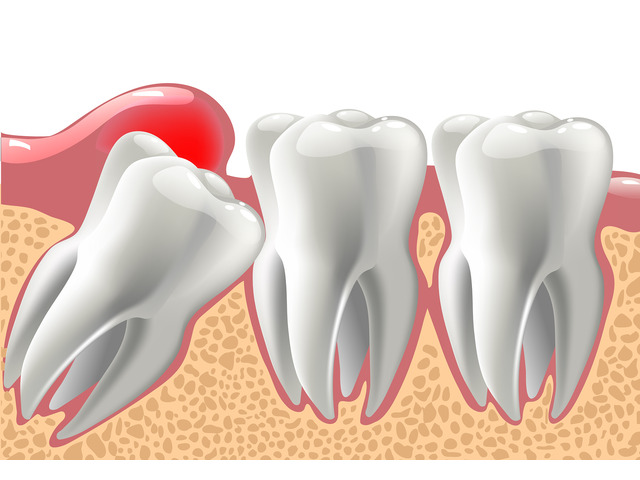 The Best Wisdom Tooth Extraction Cost in Melbourne - 1