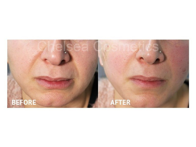 Professional Thread Face Lift in Melbourne Offered By Chelsea Cosmetics! - 1