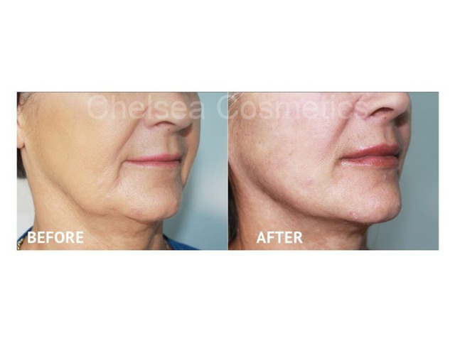 Professional Thread Face Lift in Melbourne Offered By Chelsea Cosmetics! - 3