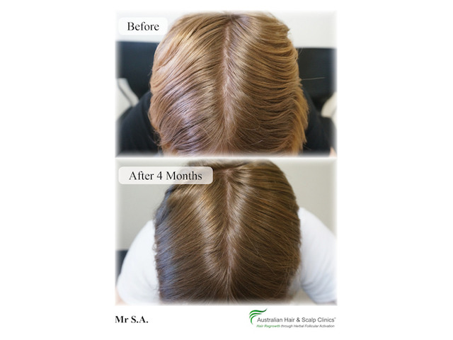 Recover from your loss with our natural hair loss treatment Gold Coast - 1