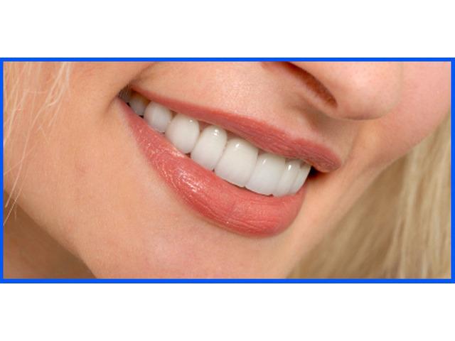 Best Dentist Chirnside Park   Maroondah Dental Care - 1
