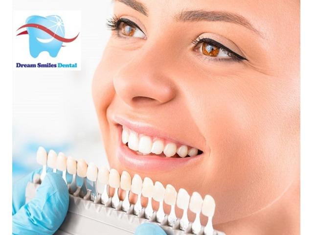 Dental Veneers Treatment in Carlingford, Australia - 1