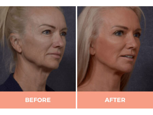 Effective Facelift Surgery in Sydney By Renowned Facial Surgeon Dr Hodgkinson! - 1