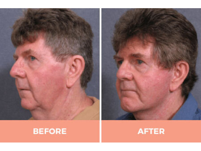 Effective Facelift Surgery in Sydney By Renowned Facial Surgeon Dr Hodgkinson! - 2