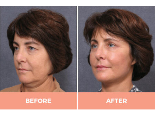 Effective Facelift Surgery in Sydney By Renowned Facial Surgeon Dr Hodgkinson! - 3