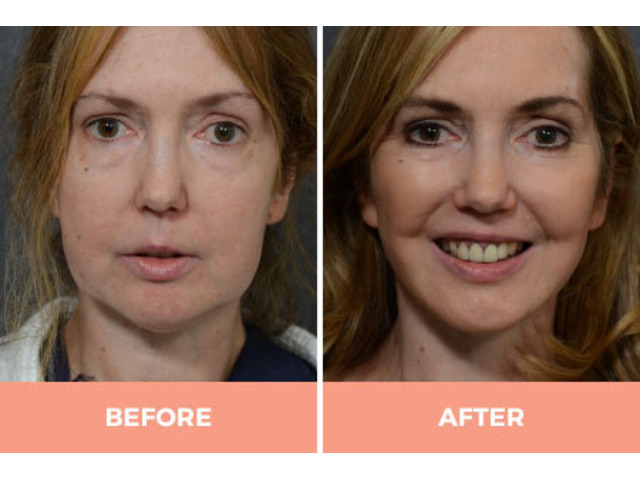 Effective Facelift Surgery in Sydney By Renowned Facial Surgeon Dr Hodgkinson! - 4