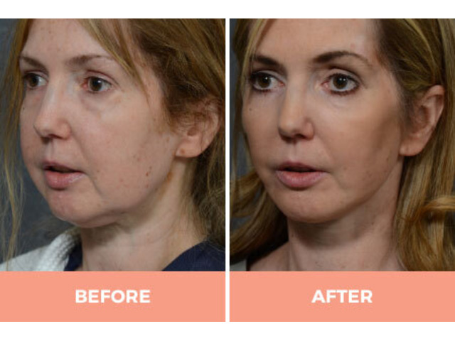 Effective Facelift Surgery in Sydney By Renowned Facial Surgeon Dr Hodgkinson! - 5