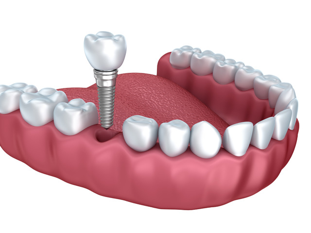 Springvale Dental Implant  Services - 1