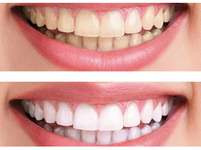Teeth Whitening - (03 95788500) - BEDC - 1