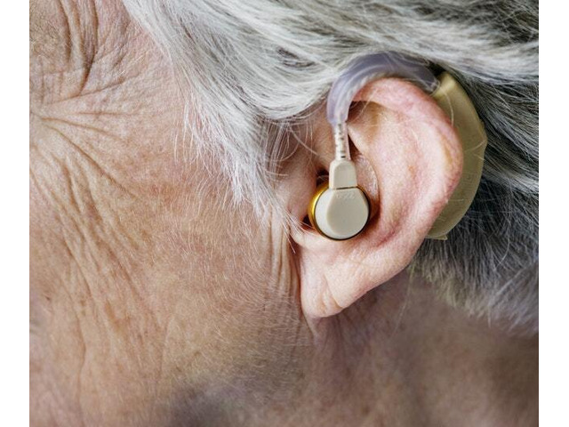 Hearing Aids at HASSA: Low on Rate but High on Quality - 1