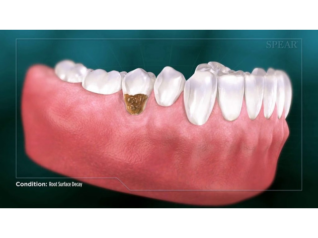 Complete Dental Oral Surgery and Implants - 1