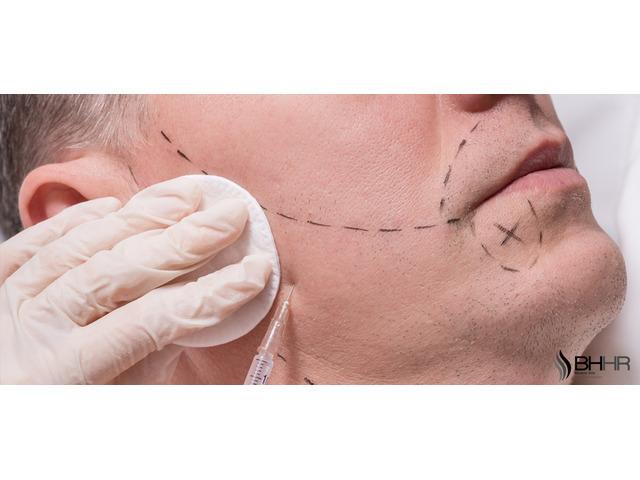 Beard Transplant - 1