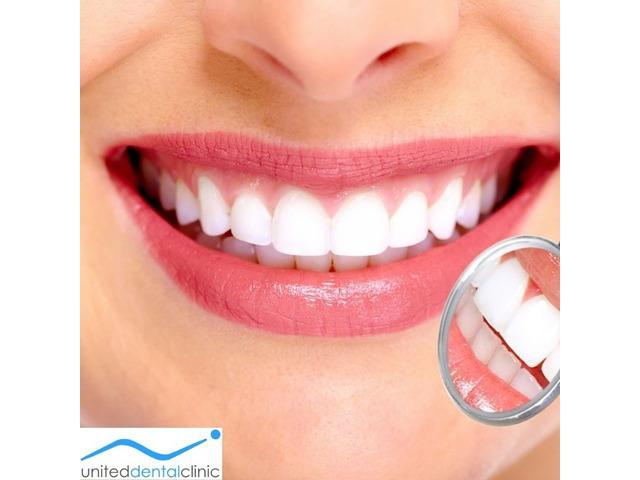 All-On-4 Dental Treatment by United Dental Clinic - 1