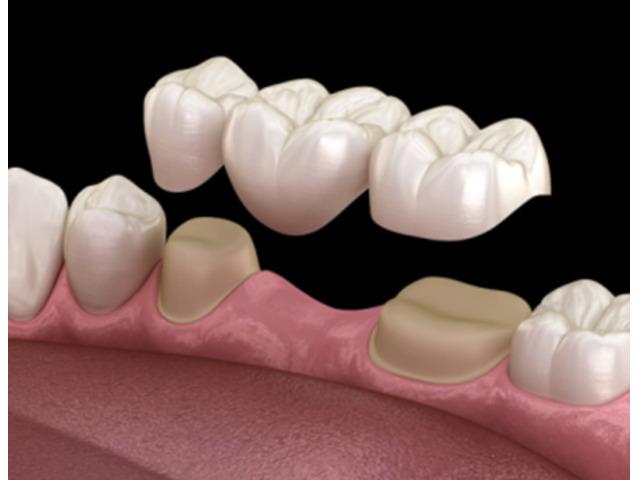 Best Dental Filling - 1