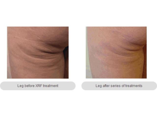 Skin Tightening Melbourne- anti-aging Cosmetic & Laser - 1