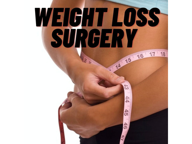 Weight loss surgery   just a few steps away from a lovely toned body - 1