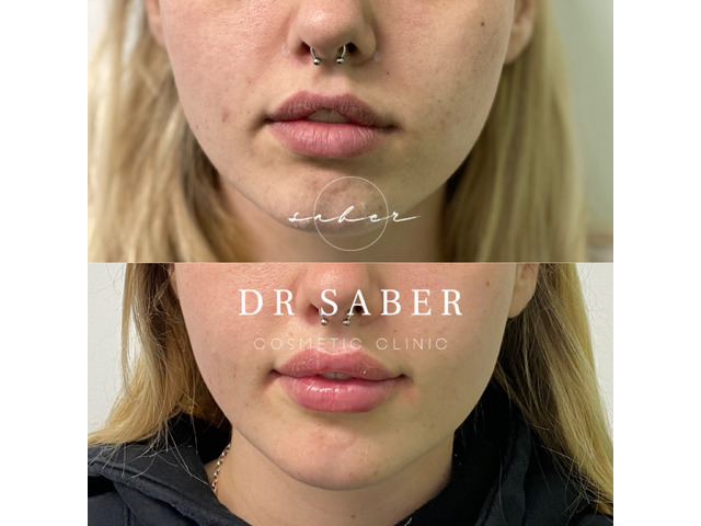 Wrinkle Relaxers | Anti Wrinkle Injections Werribee | Dr Saber - 3