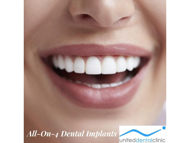 Recovery time for All-On-4 Dental Implants By United Dental Clinic - 1