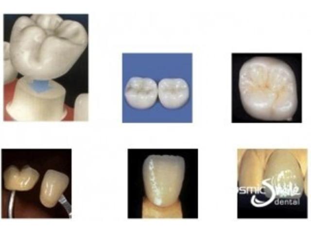 Dental Crowns in Sydney - 1