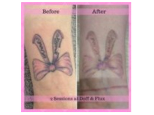 Laser Tattoo Removal in Melbourne   Doff and Flux - 4