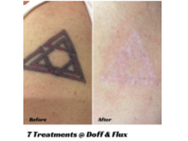 Laser Tattoo Removal in Melbourne   Doff and Flux - 5