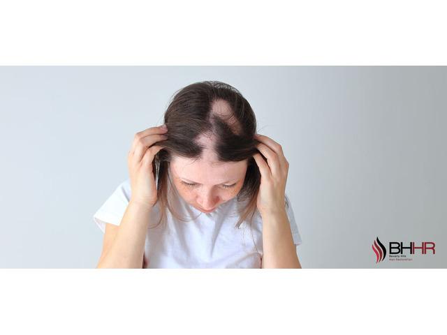 Alopecia Treatment - 1