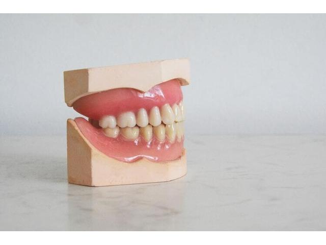 Impression Kit For Teeth - 1
