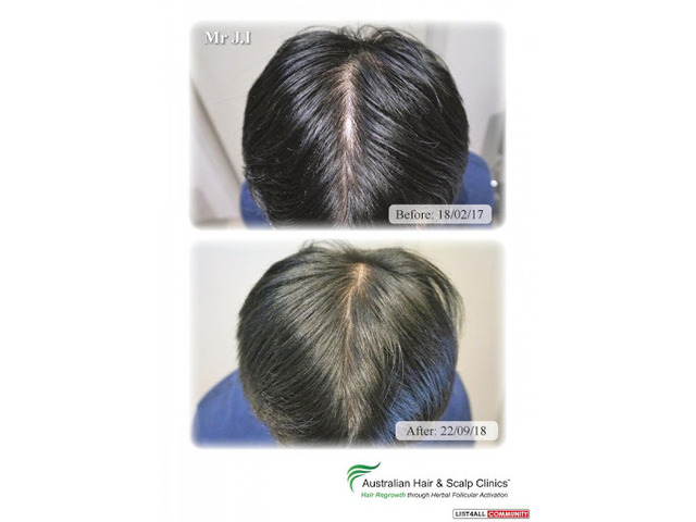 Opt for our hair loss treatment in Canberra today - 1
