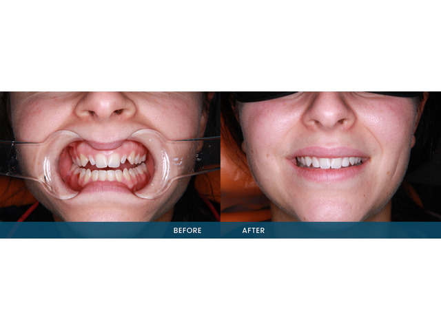 Improve Your Smile With Porcelain Veneers Service - 2