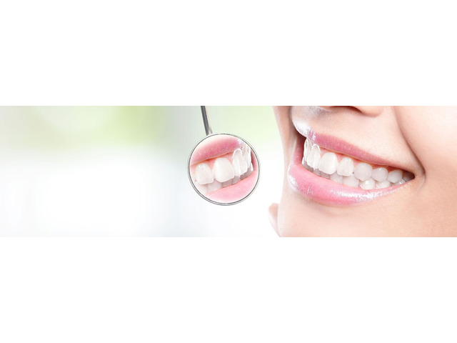 Restore Your Natural Smile With Trauma Treatment in Croydon - 2