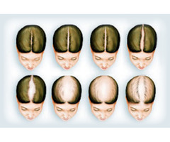 Expert Treatment for Female Hair Loss