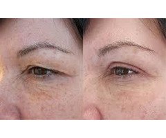 Professional Droopy Eyelid Surgery - Quality Services Offered
