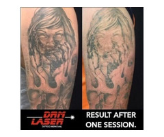 Contact DRM Laser Tattoo Removal for a Safe Tattoo Removal