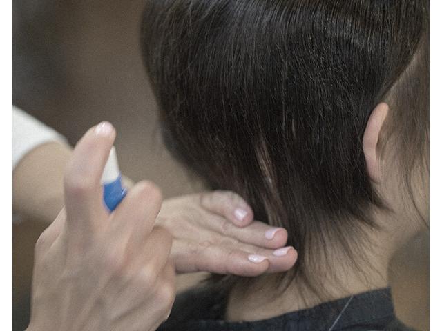 Hair Loss Clinic - 5