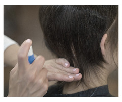 Non Surgical Hair Replacement - Image 5