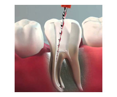 Get Best and Affordable Root Canal Treatment with Expert Endodontics of Melbourne