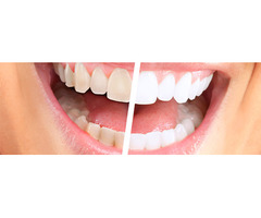 Get Excellent Teeth Whitening Treatment by Expert Dentist in Ballarat Today