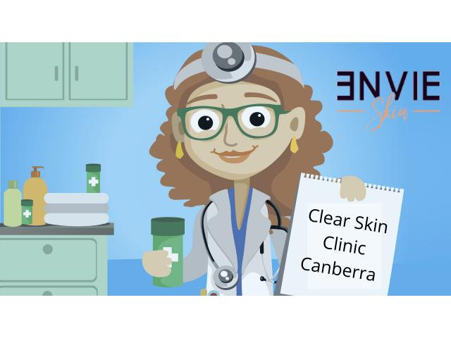 Canberra Mole Removal | Envieskin - 1