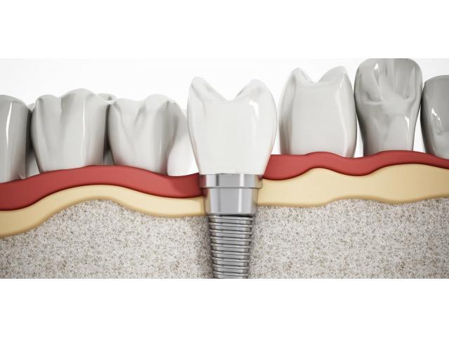 Get Best teeth implants in Melbourne | Prahran Family Dental - 3