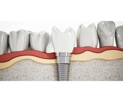 Get Best teeth implants in Melbourne | Prahran Family Dental - Image 3