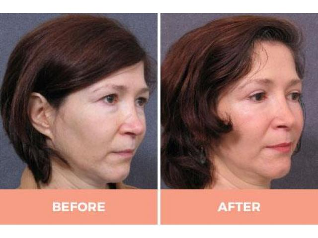 Lower Eyelid Blepharoplasty in Sydney by Dr. Hodgkinson - Visit Us Now! - 2