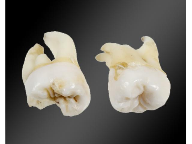 Check Out Wisdom Teeth Removal Melbourne - 1