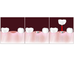 Cosmetic Teeth Implants |  Southside Dental Implant