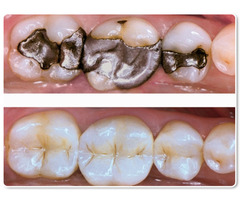 White Filling Treatment by Best Dentist of Richmond