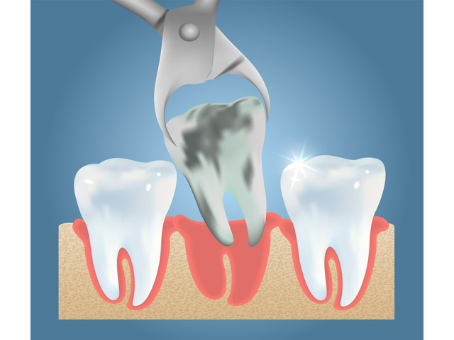 Find Out Impacted Wisdom Teeth Removal - 1