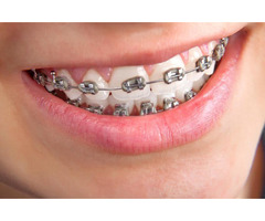 Best Orthodontists and Dental Care in Melbourne