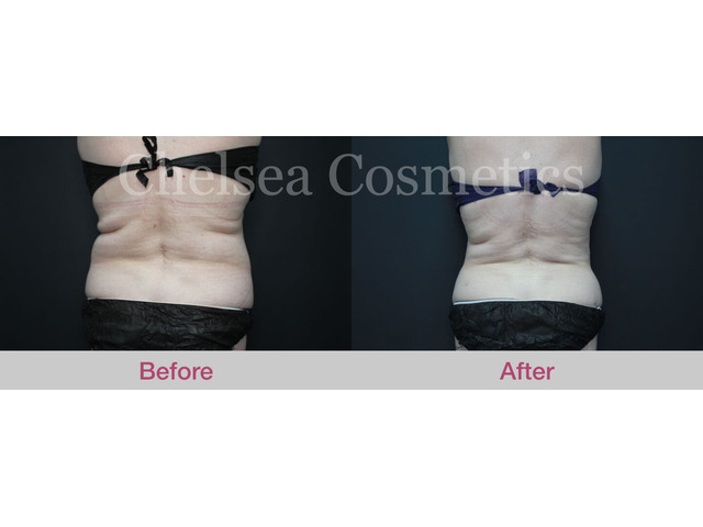 Get A Great Body With Chelsea Cosmetics' Liposuction Surgery in Melbourne - Contact Us Today! - 1