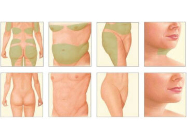 Get A Great Body With Chelsea Cosmetics' Liposuction Surgery in Melbourne - Contact Us Today! - 4