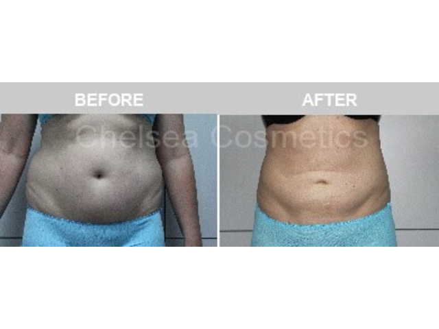 Get A Great Body With Chelsea Cosmetics' Liposuction Surgery in Melbourne - Contact Us Today! - 5